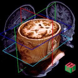 MRI 3D Render